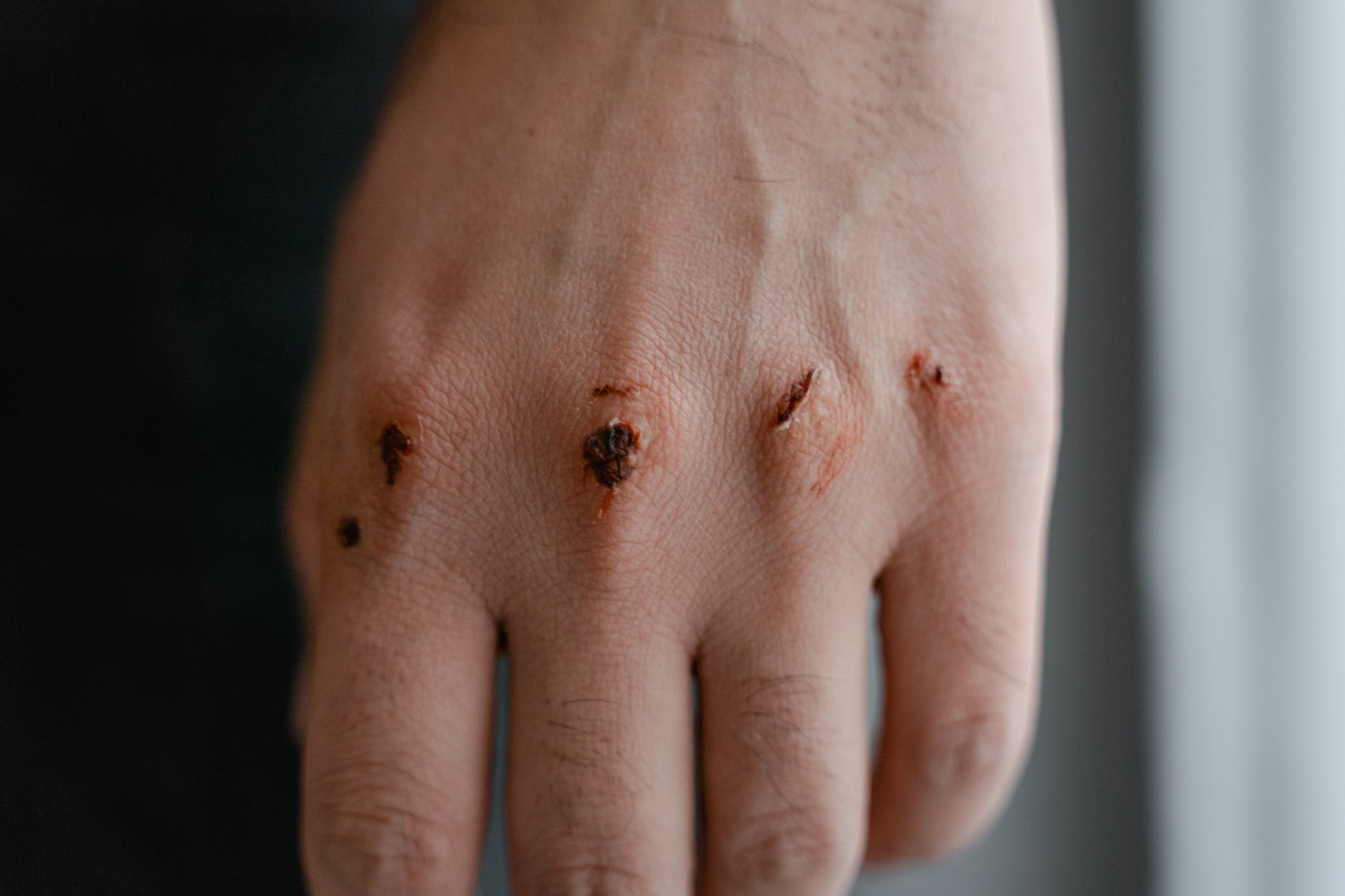wounded knuckles